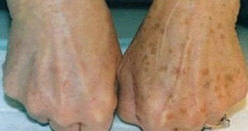 Πώς να μειώσετε τις κηλίδες στα χέρια