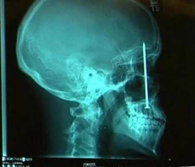 crazy x-ray