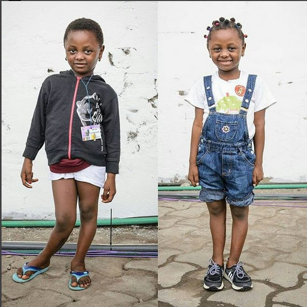 See This Girl's Transformation After Undergoing Surgery To Correct Her K-leg