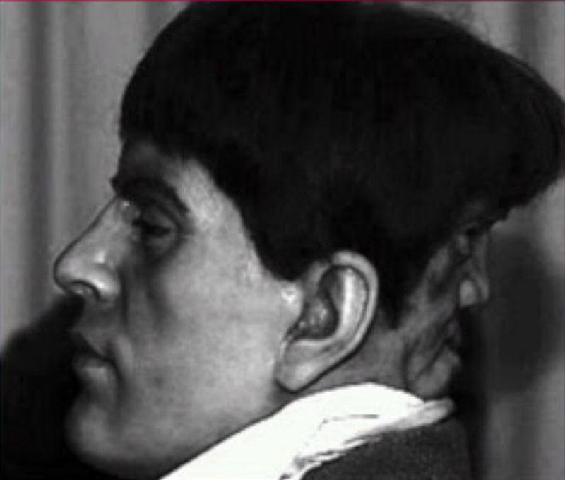 Edward Mordake - O homem de 2 rostos