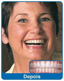 antes-e-depois-aparelho-dentario-8