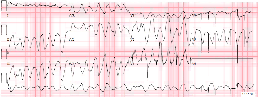 Hyperkalemia with polymorphic ventricular tachycardia vs VF