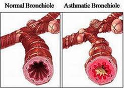 Заговор от бронхиальной астмы