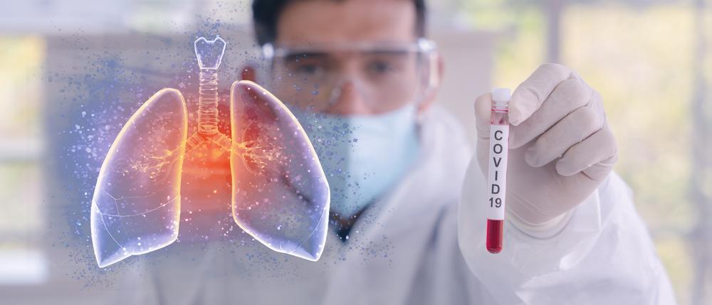 Ausência da proteína Alfa-1 antitripsina expõe pulmão às infecções graves (Fonte: Shutterstock)