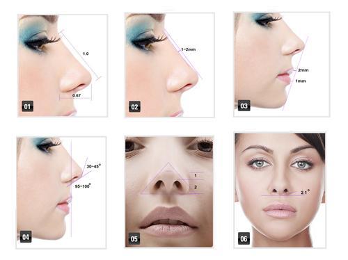 韓式三段式隆鼻