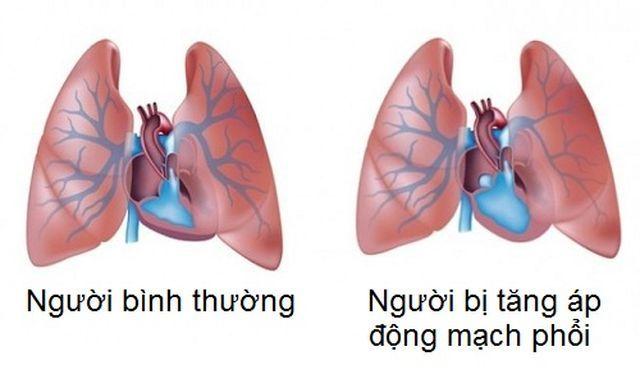 Hình ảnh phổi của người bệnh