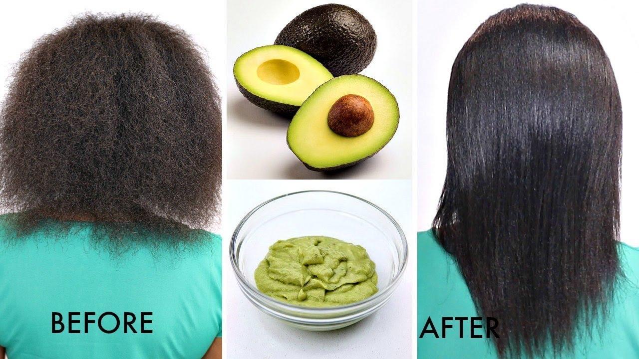 Image result for treatment bald women Avokado