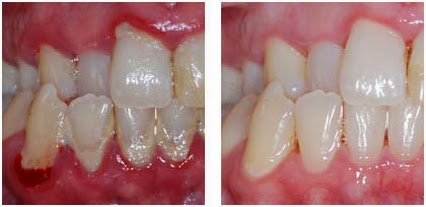 Gum Treatment - Bright Smile Dental Clinic - Preston | Melbourne
