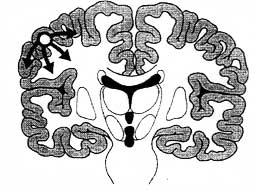 The abnormal impulses originate from a specific area of the cerebral cortex and do not spread