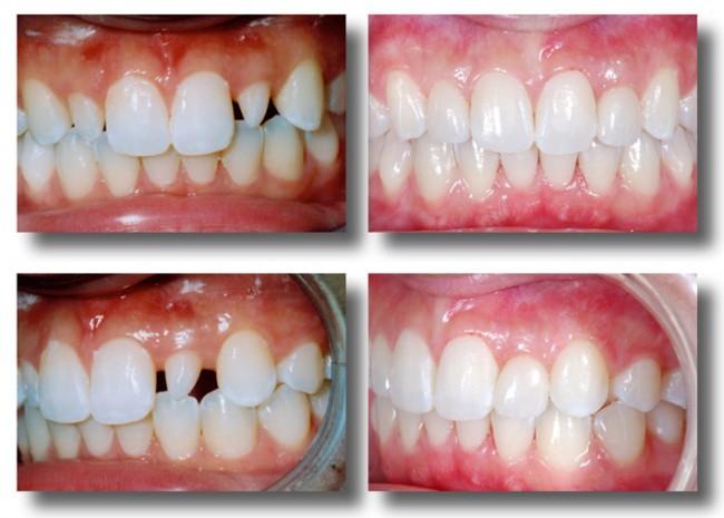 Răng sứ không kim loại giá bao nhiêu rẻ nhất hiện nay? 1