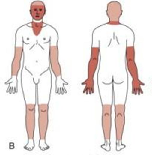 queratosis actinica bowenoide