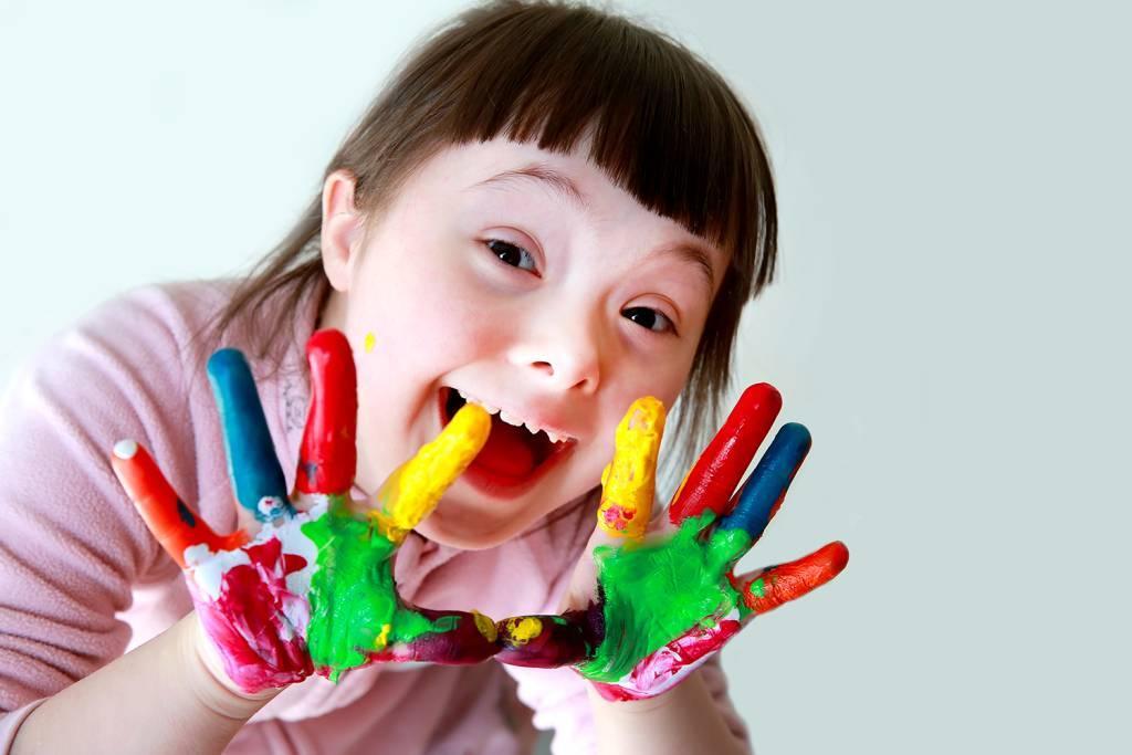 sindrome-de-down-caracteristicas-atividades-6