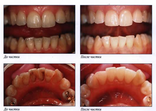 До и после снятия зубного камня