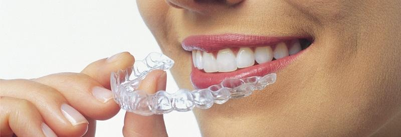 Braces Dentist