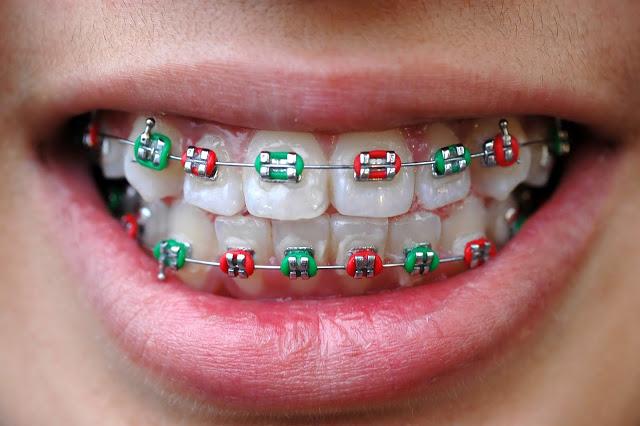 dental braces singapore
