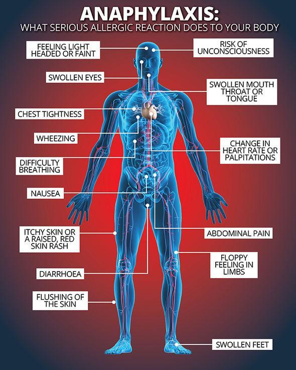 C:\Users\1\Desktop\Symptoms-of-anaphylaxis-550283.jpg