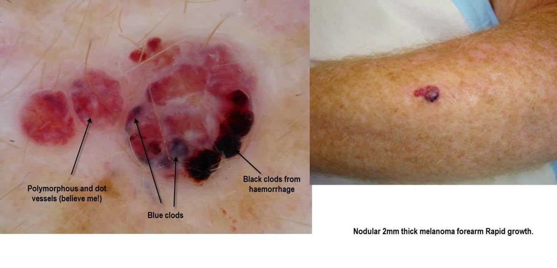 blanco en dermatoscopia: melanoma amelanótico
