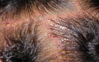 Relation between hair loss and inflammation?