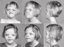 Image result for apert syndrome