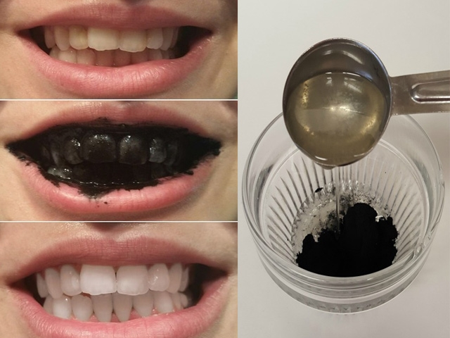 Cách làm trắng răng bằng lá ổi tại sao có hiệu quả, thực hiện thế nào? 1