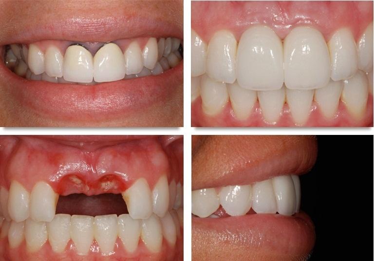 Bọc răng sứ thẩm mỹ Vita sử dụng được bao lâu? 1