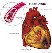 Golongan Darah & Penyakit Jantung