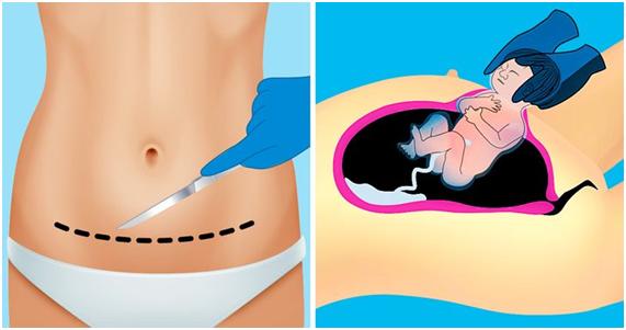 Ilustrações sobre corte da cesárea