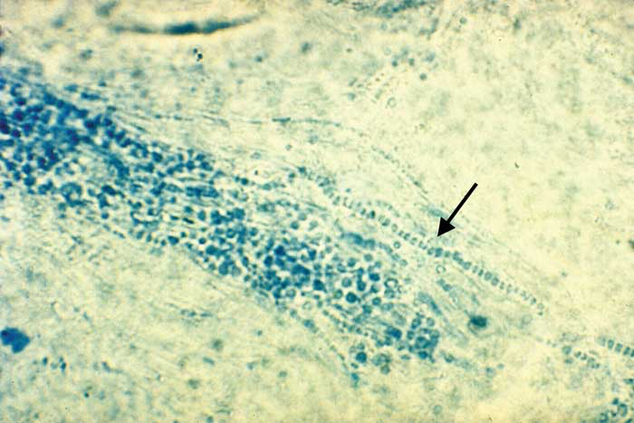 Dermatophytes are rarely identified, even by experienced technicians during direct examination of infected hair.
