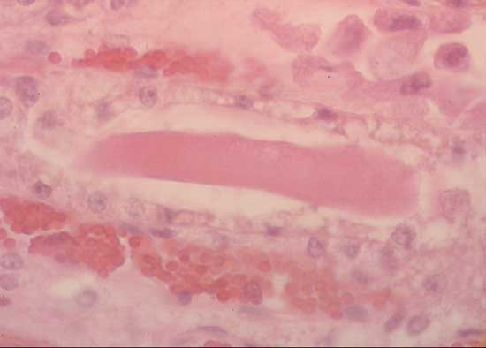 Myoglobinuric cylinder in renal tubule from a fatal atypical myopathy case