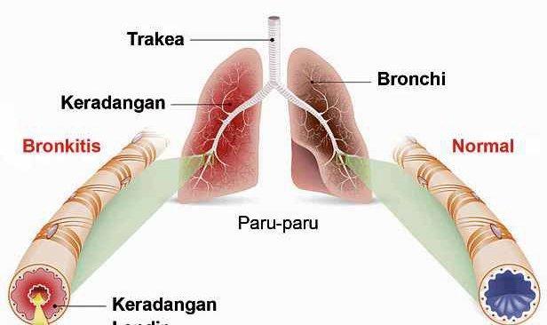 Batuk berterusan petanda bronkitis
