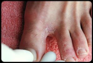 desinfektionsmittel coif 39 hygiene 39 s blog