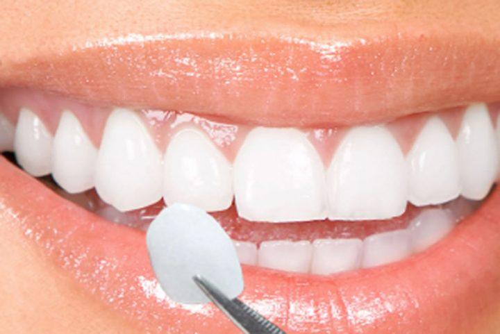 Estética dental: 5 procedimentos que você deveria conhecer - Lentes de Contato