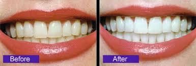 Tẩy trắng răng không ê buốt tại Nha khoa Bally