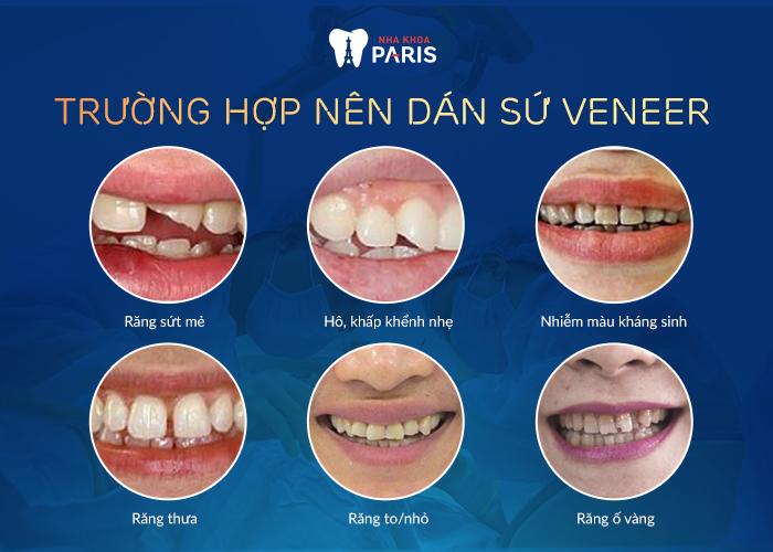 Veneer Ultrathin - Lựa chọn số 1 để có hàm răng sáng đẹp như ý - Ảnh 3