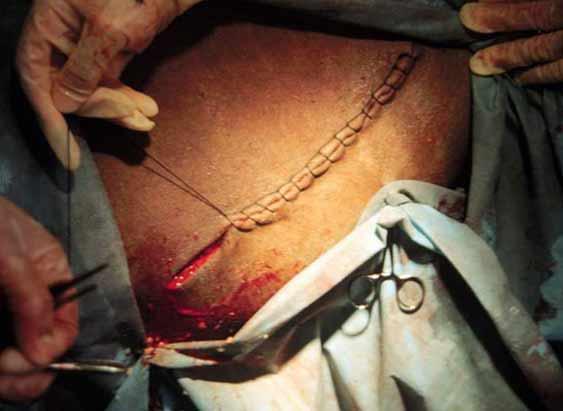 Operación cesárea en la camella: Sutura de la piel utilizando el tipo de sutura interlocking.