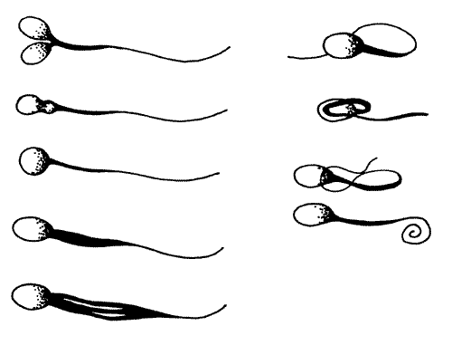 Sperm defects such as malformed heads, midpieces, or tails, are associated with spermatogenesis