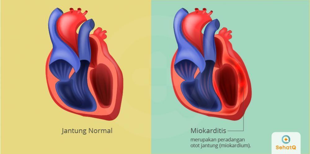 Miokarditis menyebabkan detak jantung tidak normal dan dapat mengakibatkan komplikasi berupa stroke