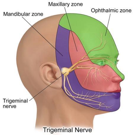 Relieving Migraine Headache Pain with Trigeminal Nerve Stimulation