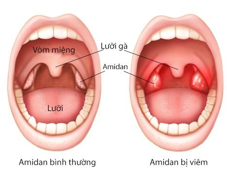 nguyen-nhan-gay-benh-viem-amidan-va-giai-phap-chua-dut-diem-viem-amidan-amidan-hoc-mu