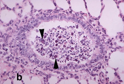 Higher power image of bronchiolitis showing dark, enlarged sloughed epithelial cells (arrows) that contain adenovirus inclusion bodies.