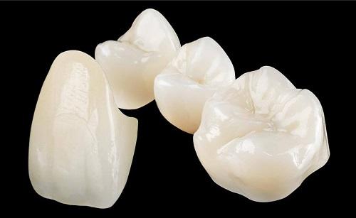 """Chi phí bọc răng sứ bao nhiêu tiền? Bảng giá """"SIÊU ƯU ĐÃI"""" 2018"""