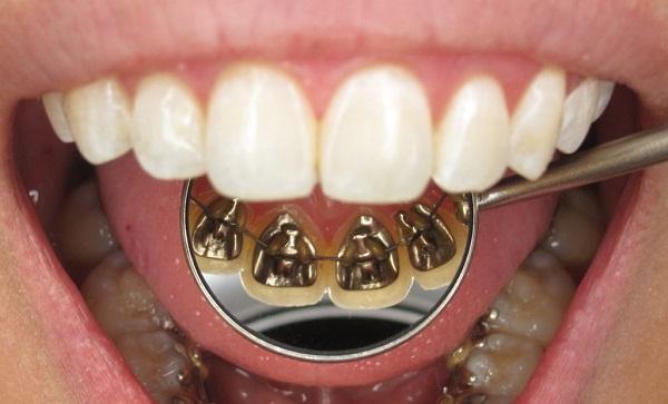 Niềng răng mặt trong có đắt không, tại sao mắc cài này có giá cao?