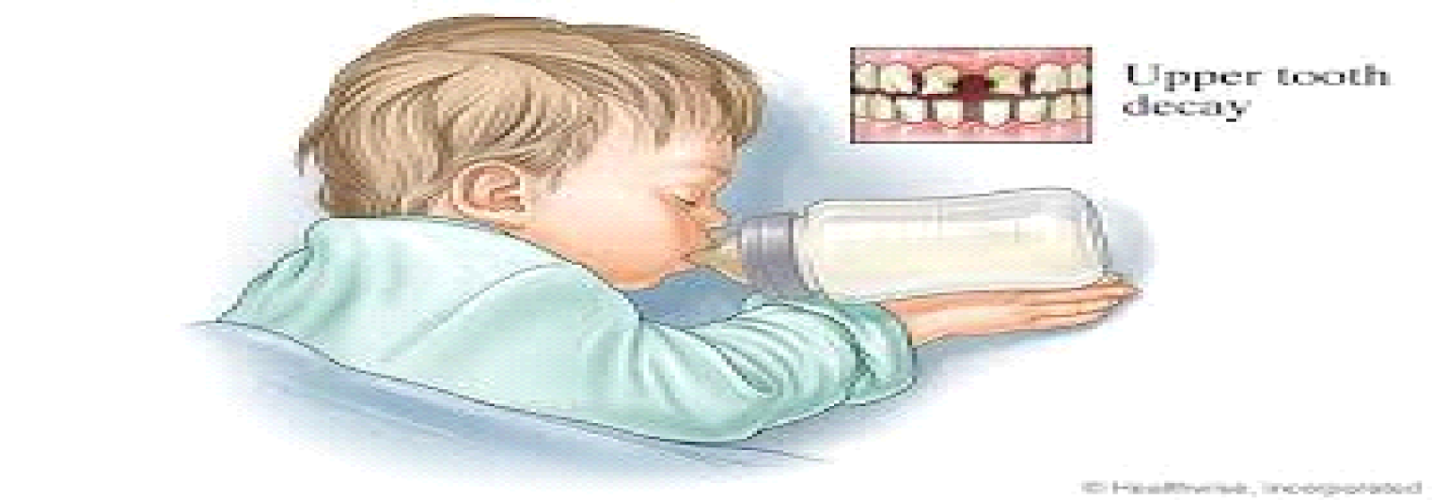 Preventing Tooth Decay in Infants