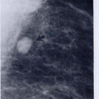Image result for intramammary lymph node mammogram