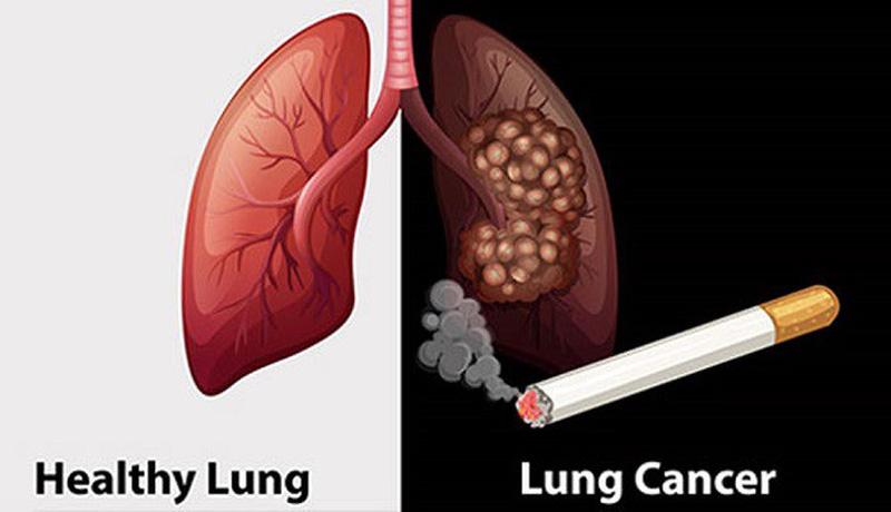 Hút thuốc lá - nguyên nhân gây ung thư phổi
