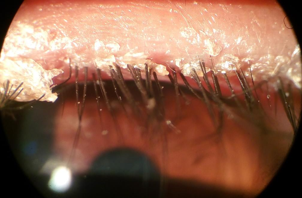 What is Blepharitis