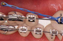 Teeth with traditional metal braces and temporary anchorage device - TADs