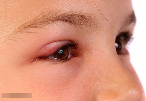 Lẹo mắt gây sưng và đau