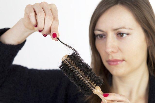 Tóc rụng nhiều có thể là dấu hiệu của nấm da đầu