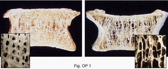 Hình ảnh xương bình thường (hình trái) và hình ảnh loãng xương (hình phải) ở thân đốt sống (Nguồn: EuroSpine.org)